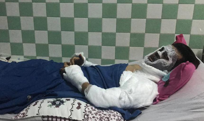 Việt kiều bị tạt axit ngày Tết: Đôi mắt bị tổn thương nặng-1