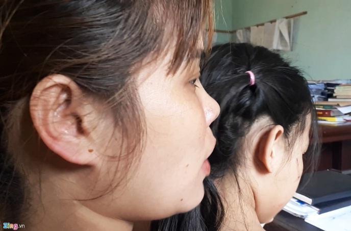 Bé gái 8 tuổi bị cha ruột đánh bầm tím khắp người-1