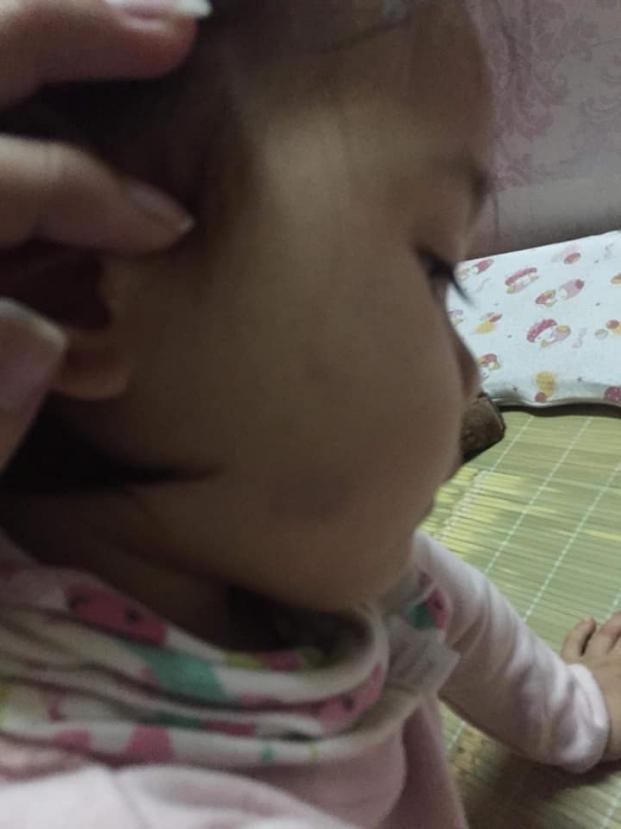 Bé mầm non ở Hà Nội bị cô giáo lôi ra góc lớp tát tới tấp vì không chịu ăn-2
