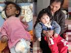 Gần 3 năm được nhận nuôi, đến cả mẹ nuôi cũng xuýt xoa trước ngoại hình cao lớn của bé gái suy dinh dưỡng ở Lào Cai