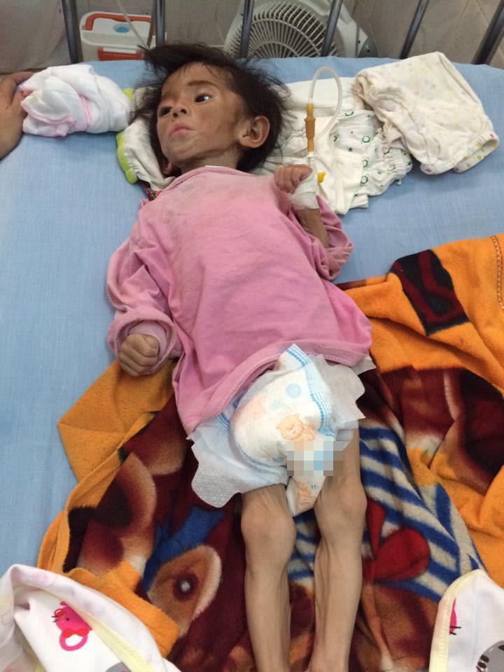 Gần 3 năm được nhận nuôi, đến cả mẹ nuôi cũng xuýt xoa trước ngoại hình cao lớn của bé gái suy dinh dưỡng ở Lào Cai-1
