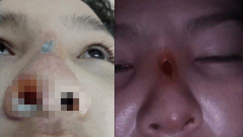 Chi mạnh tay làm đẹp nhưng gặp cơ sở thẩm mỹ chui, cô gái ở Đồng Nai bị biến chứng thủng mũi-1