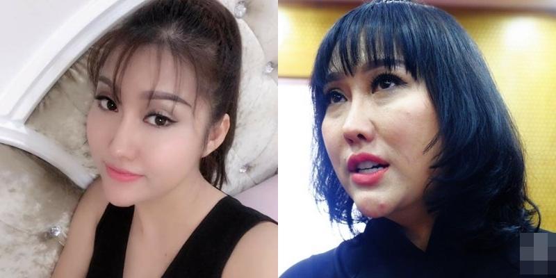 Tổng cộng 16 cuộc phẫu thuật với số tiền chi tới hơn 1 tỷ đồng, Phi Thanh Vân không ngờ bị dao kéo hại với ngoại hình vừa đau vừa xấu-6