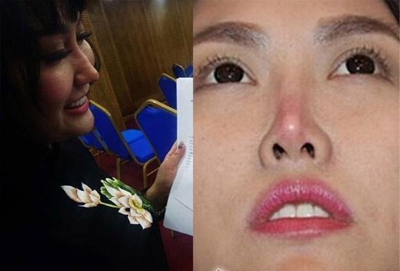 Tổng cộng 16 cuộc phẫu thuật với số tiền chi tới hơn 1 tỷ đồng, Phi Thanh Vân không ngờ bị dao kéo hại với ngoại hình vừa đau vừa xấu-4