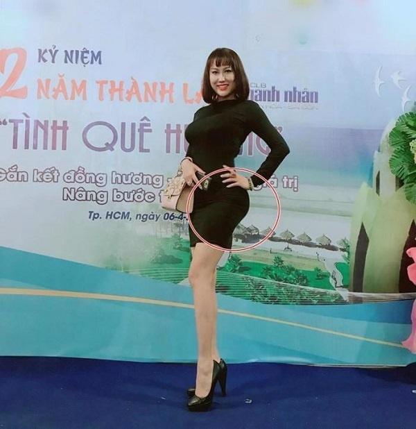 Loạt sao Việt dao kéo giờ thay đổi ra sao: Phi Thanh Vân xuống cấp, Ngân Anh môi hết sưng, được khen ngợi xinh đẹp-4