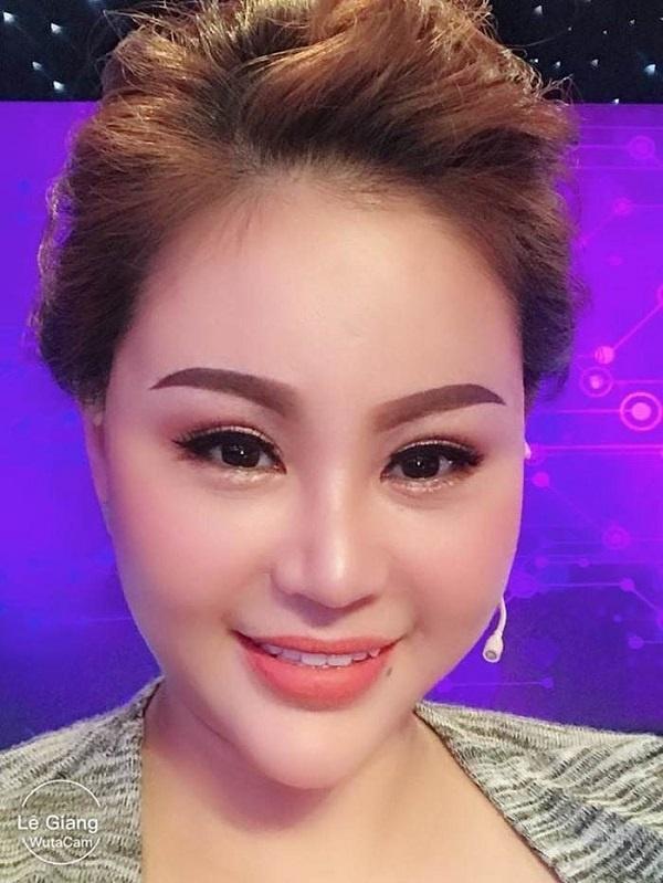 Loạt sao Việt dao kéo giờ thay đổi ra sao: Phi Thanh Vân xuống cấp, Ngân Anh môi hết sưng, được khen ngợi xinh đẹp-9