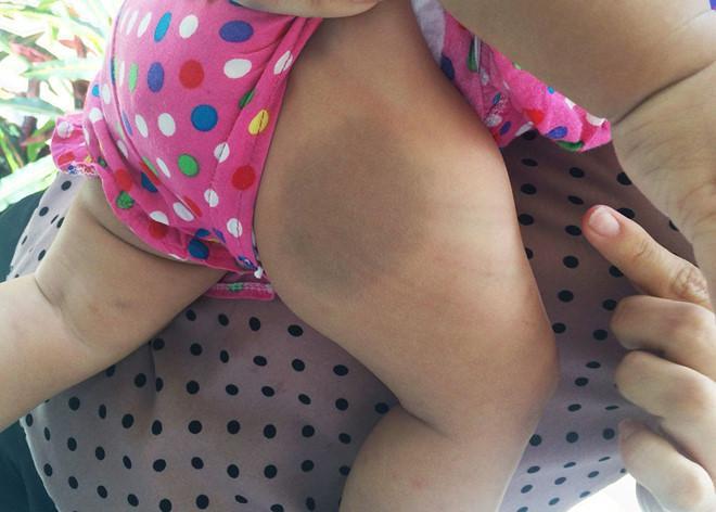 Bé gái 8 tháng tuổi nghi bị mẹ nuôi bạo hành, nhốt trong phòng trọ-2