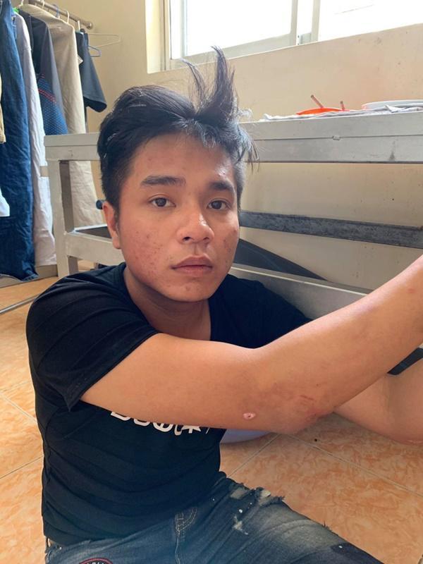 Bắt băng nhóm cướp giật giỏ xách, kéo lê người phụ nữ mang thai ở Sài Gòn-1
