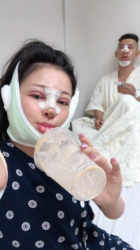 Ngân 98 và Lương Bằng Quang tự tin đăng ảnh băng bó gương mặt có đôi có cặp hậu phẫu thuật thẩm mỹ-2