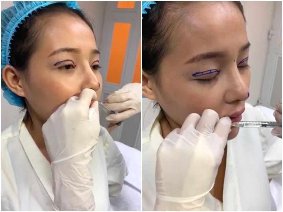Ngân 98 và Lương Bằng Quang tự tin đăng ảnh băng bó gương mặt có đôi có cặp hậu phẫu thuật thẩm mỹ-5