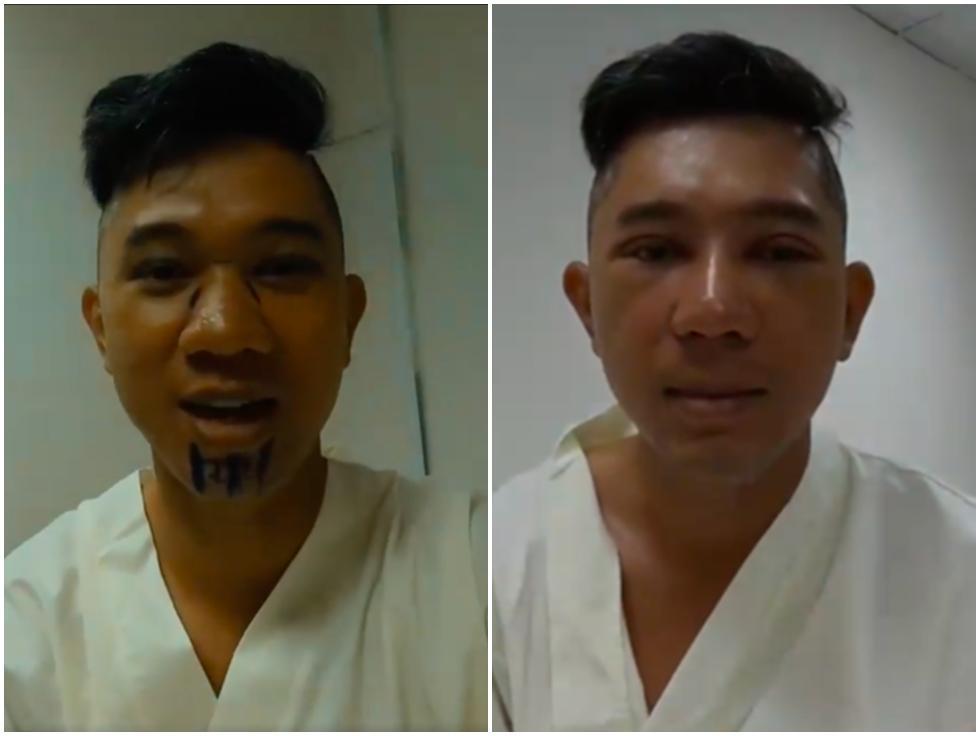 Ngân 98 và Lương Bằng Quang tự tin đăng ảnh băng bó gương mặt có đôi có cặp hậu phẫu thuật thẩm mỹ-7