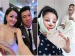 Vịt hóa thiên nga sau đại phẫu gương mặt, Lương Bằng Quang và Ngân 98 công khai giá khiến ai nấy rợn người-7