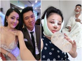 Ngân 98 và Lương Bằng Quang tự tin đăng ảnh băng bó gương mặt 'có đôi có cặp' hậu phẫu thuật thẩm mỹ
