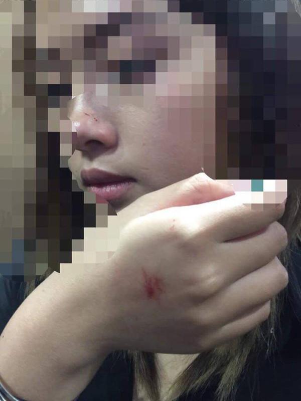 Tình tiết bất ngờ vụ cô gái trẻ bị sàm sỡ trong thang máy chung cư-2