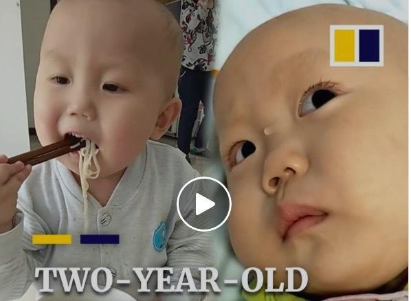 Rớt nước mắt nhìn bé 2 tuổi gắp thức ăn nhoay nhoáy phải chống chọi ung thư-1
