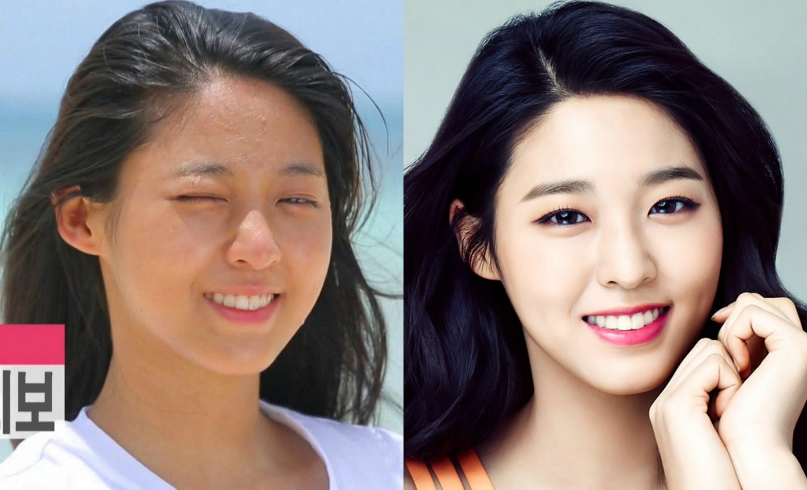 Hẳn là phải thức đêm khá nhiều và thường xuyên makeup dày thì phần trán của Seolhyun mới nhiều mụn ẩn đến như thế. May là cô chưa có nhiều nếp nhăn ...
