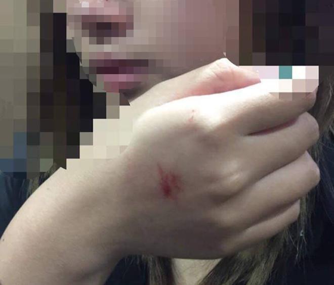 Cô gái bị cưỡng hôn trong thang máy: Tôi rất thất vọng-1