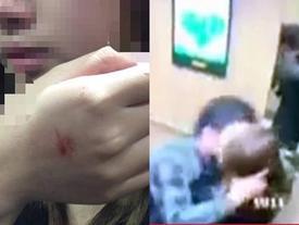 Cô gái bị cưỡng hôn trong thang máy: 'Tôi rất thất vọng'