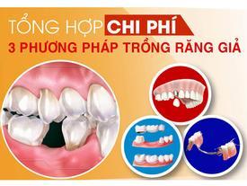 Tặng răng sứ khi trồng răng Implant ở Nha khoa Đông Nam