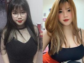 Hotgirl Hải Dương phải phẫu thuật ngực vì quá 'khủng' năm trước giờ ra sao?