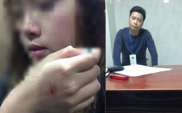 Bộ Công an vào cuộc điều tra lại vụ kẻ sàm sỡ nữ sinh trong thang máy chỉ bị phạt 200.000 đồng-1