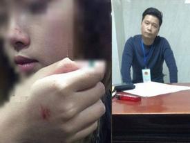 Bộ Công an vào cuộc điều tra lại vụ kẻ sàm sỡ nữ sinh trong thang máy chỉ bị phạt 200.000 đồng