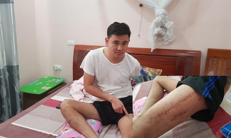 Cảnh sát 113 Thanh Hóa bắn thanh niên nát xương đùi vì nghi ngáo đá-2