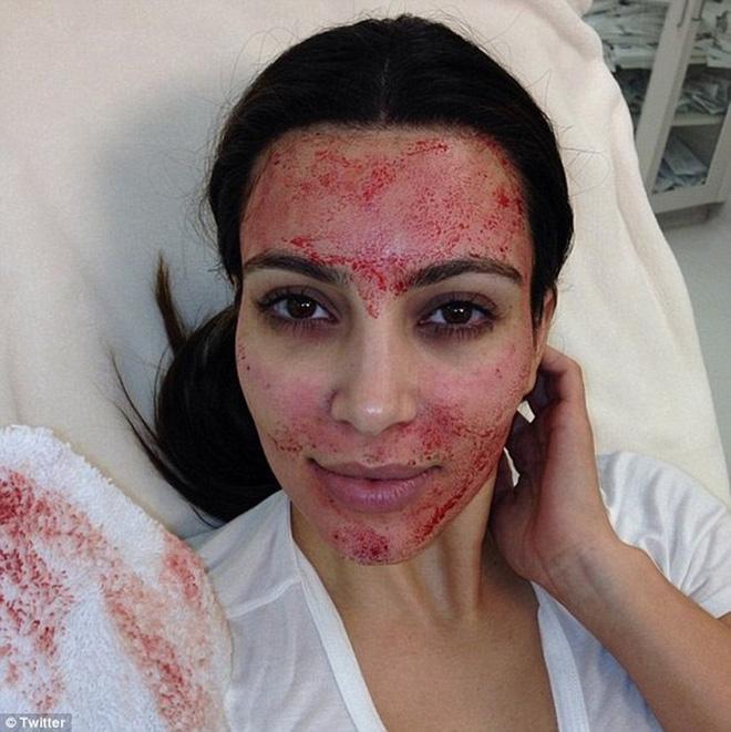 Học theo Kim Kardashian, Minh Tú khiến fan hãi hùng với clip quay cảnh trán đầy những vết tiêm máu-4