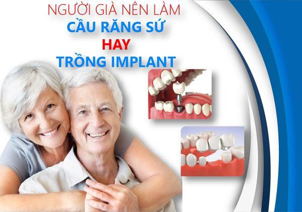 Lý do nhiều người cao tuổi trồng răng Implant-1