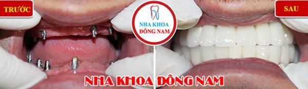 Lý do nhiều người cao tuổi trồng răng Implant-2