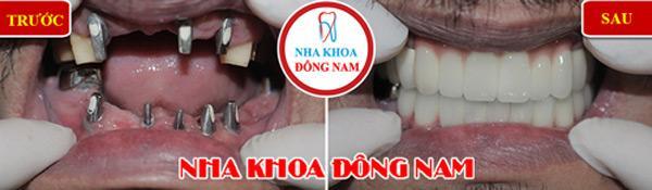 Lý do nhiều người cao tuổi trồng răng Implant-4