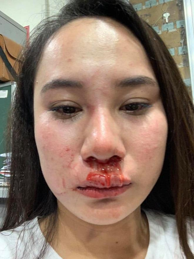 Cô gái bị đánh ghen kinh hoàng ở Vincom một mực kêu oan không cướp chồng, người vợ tung tin nhắn phản đòn chối nữa đi-2