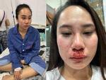 Vụ cô gái bị đánh ghen, lột váy kinh hoàng ở Hà Nội: Nạn nhân làm đơn trình báo công an-4