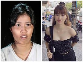 Từng bị miệt thị vì xấu, 9X Tiền Giang, Quảng Bình thay đổi 'giao diện' 180 độ nhờ phẫu thuật thẩm mỹ