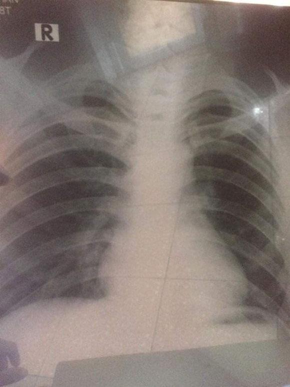 Chia sẻ đẫm lệ về sự hối hận muộn màng của chàng trai trẻ bị ung thư phổi vì hút thuốc lá từ sớm-2