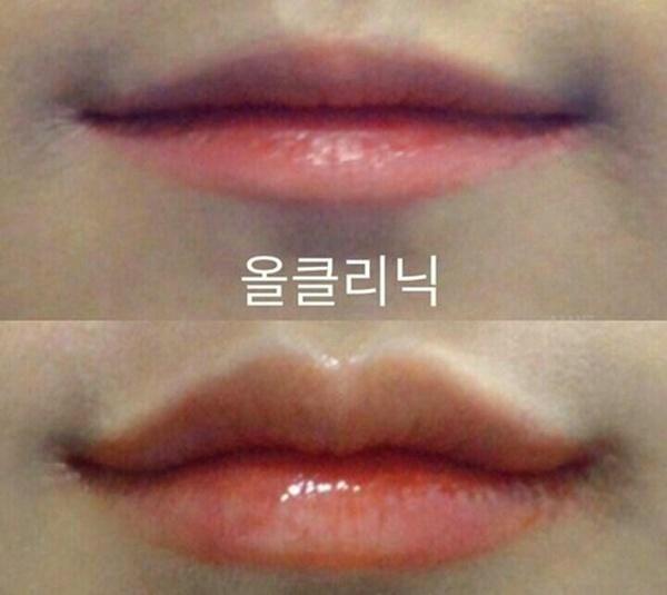 Thiếu nữ Hàn đổ xô đi tạo hình môi chữ M giống chị đẹp Son Ye Jin-4