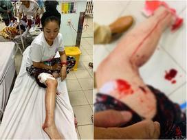 Danh hài Thúy Nga tai nạn, máu chảy đầm đìa phải cấp cứu khâu gần 10 mũi trên bắp đùi