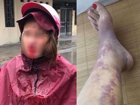 Nhói lòng đọc tâm sự của người vợ hi sinh 12 năm, đến khi có nhà lầu, xe hơi thì chồng đánh đập rồi đi với gái