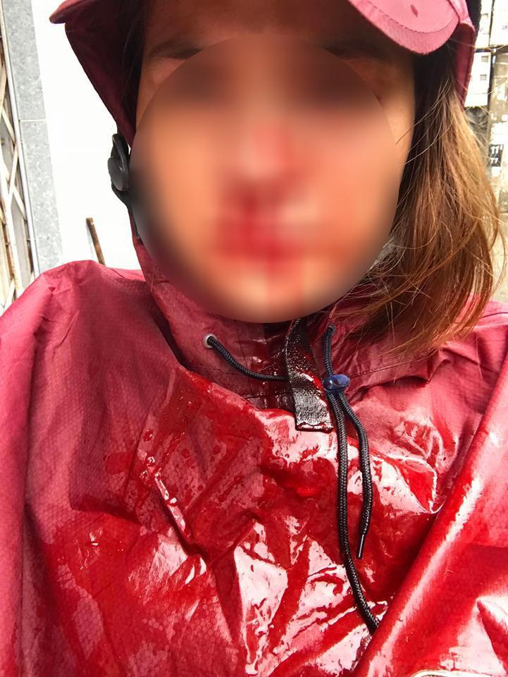 Nhói lòng đọc tâm sự của người vợ hi sinh 12 năm, đến khi có nhà lầu, xe hơi thì chồng đánh đập rồi đi với gái-4
