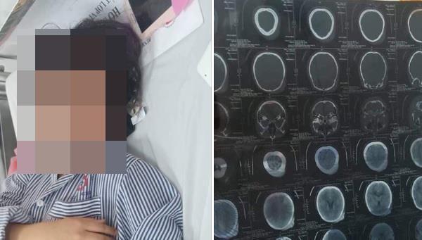Nữ sinh Quảng Ninh bị đánh nhập viện không phải bạo lực học đường-2
