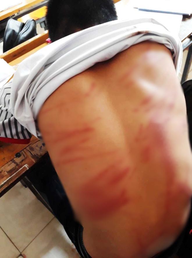 Vụ nam sinh lớp 8 bị bố đánh dã man phải nhập viện: Vợ cũ tố chồng từng đánh mình gãy tay và dọa giết-3