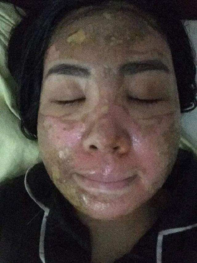 Sốc trước gương mặt của cô gái trẻ trước 15 ngày cưới khi tin vào mỹ phẩm xịn-1