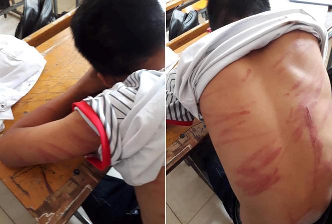 79 vết thương trên người, nam sinh lớp 8 hoảng hốt kể lại chuyện bị bố đẻ bạo hành-1