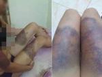 Cô gái bị đánh đến sẩy thai ở TP HCM: Cô ve chai kể phút thấy bé sơ sinh trong túi rác-4