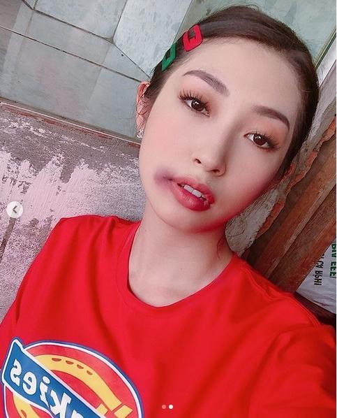 Khổng Tú Quỳnh bị đánh bầm dập mặt mày vẫn đam mê chụp ảnh-2
