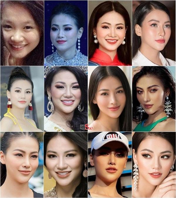 Thay mặt như thay áo, Hoa hậu Trái đất 2018 Phương Khánh bị nghi nghiện phẫu thuật thẩm mỹ khó dừng-14