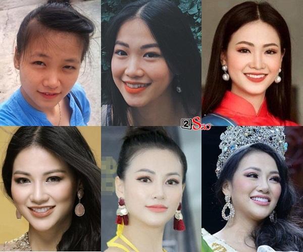 Thay mặt như thay áo, Hoa hậu Trái đất 2018 Phương Khánh bị nghi nghiện phẫu thuật thẩm mỹ khó dừng-2