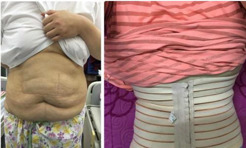 Từng đau đớn phẫu thuật hút 8 lít mỡ, hot girl trăm ký Thủy Tiên gây sốc với ngoại hình như phút ban đầu ngày tái xuất-3