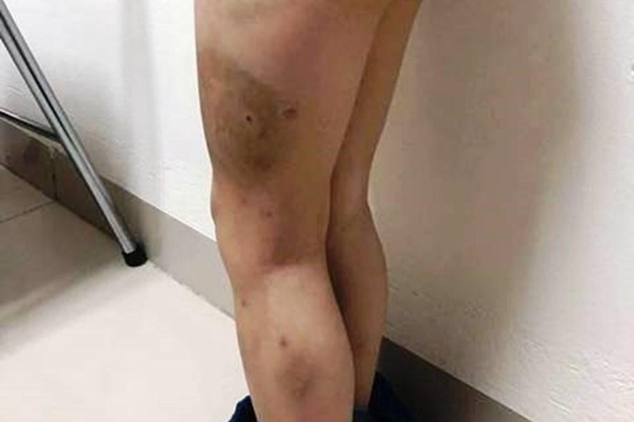 Bé 7 tuổi bị bố bạo hành: Người mẹ đau đớn gửi đơn đến BV Việt Đức-1