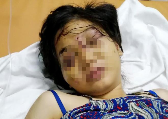 Bắt nghi phạm chủ mưu tra tấn cô gái 18 tuổi đến sẩy thai-2